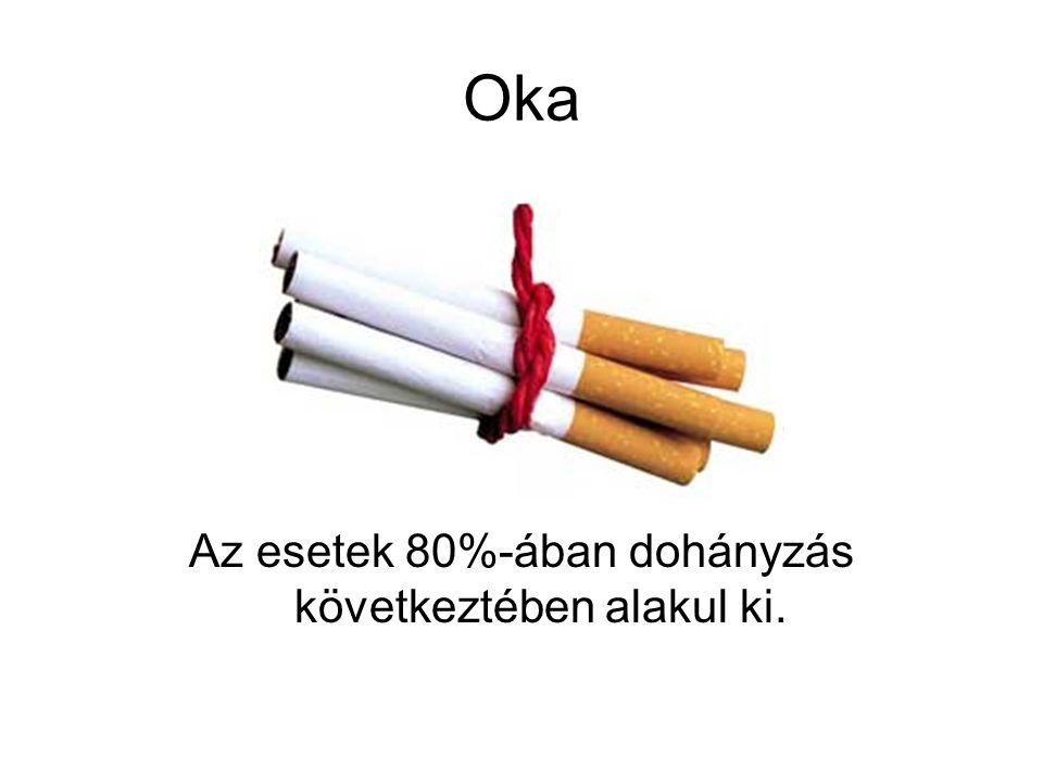 Az esetek 80%-ában dohányzás következtében alakul ki.