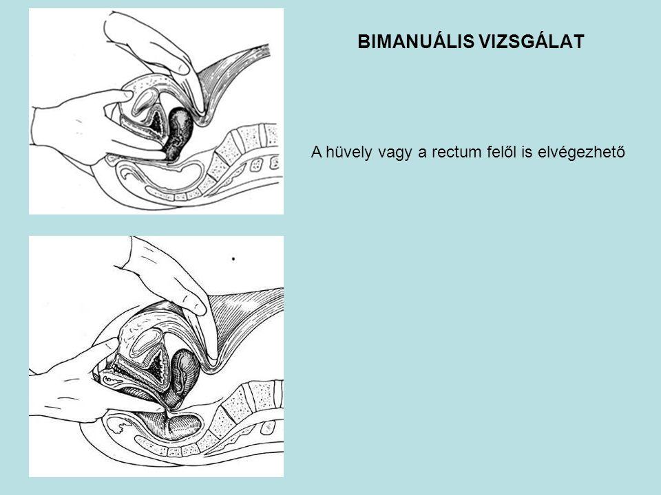 BIMANUÁLIS VIZSGÁLAT A hüvely vagy a rectum felől is elvégezhető