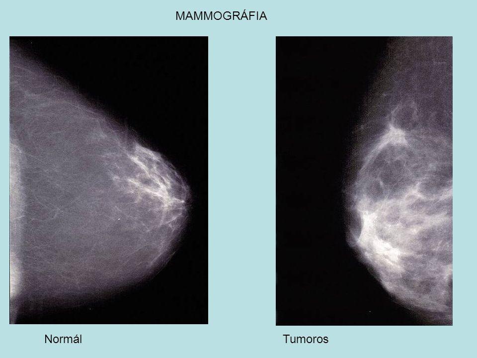 MAMMOGRÁFIA Normál Tumoros