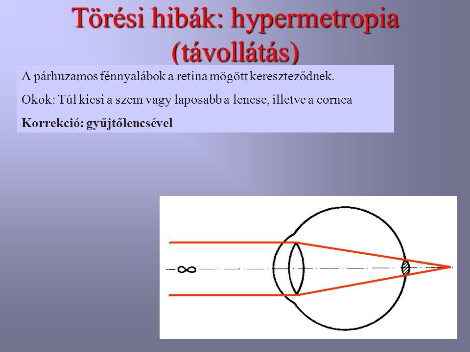 Törési hibák: hypermetropia (távollátás)