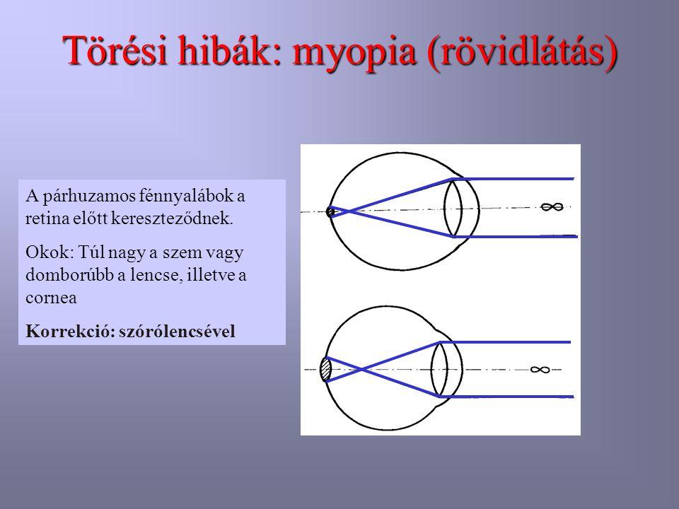 Törési hibák: myopia (rövidlátás)