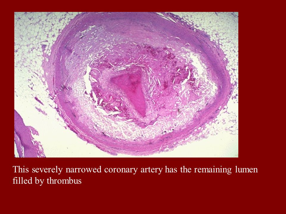 This severely narrowed coronary artery has the remaining lumen filled by thrombus