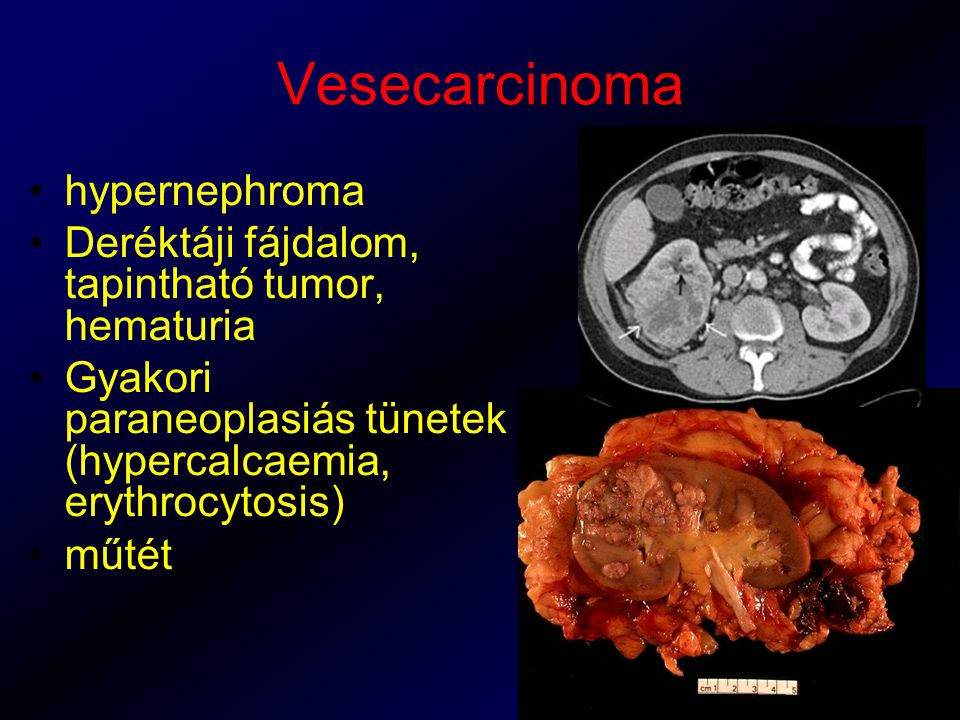 Vesecarcinoma hypernephroma