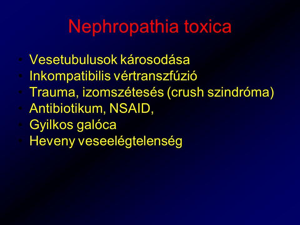 Nephropathia toxica Vesetubulusok károsodása
