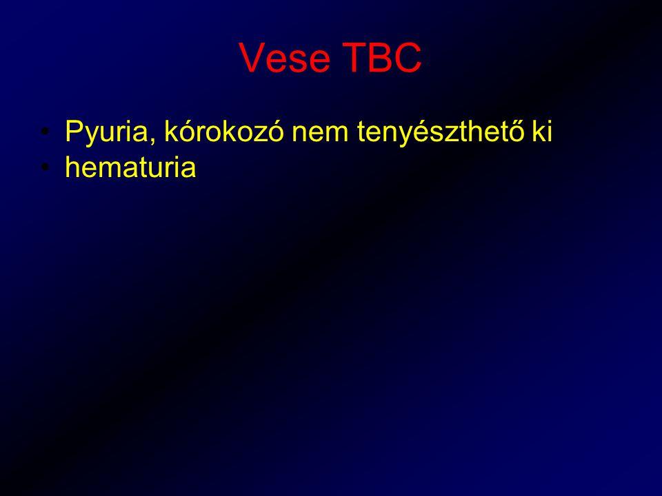 Vese TBC Pyuria, kórokozó nem tenyészthető ki hematuria