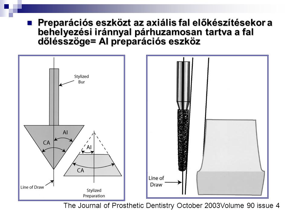 Preparációs eszközt az axiális fal előkészítésekor a behelyezési iránnyal párhuzamosan tartva a fal dőlésszöge= AI preparációs eszköz