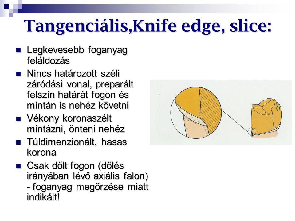 Tangenciális,Knife edge, slice: