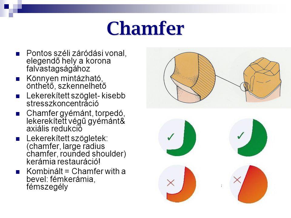 Chamfer Pontos széli záródási vonal, elegendő hely a korona falvastagságához. Könnyen mintázható, önthető, szkennelhető.