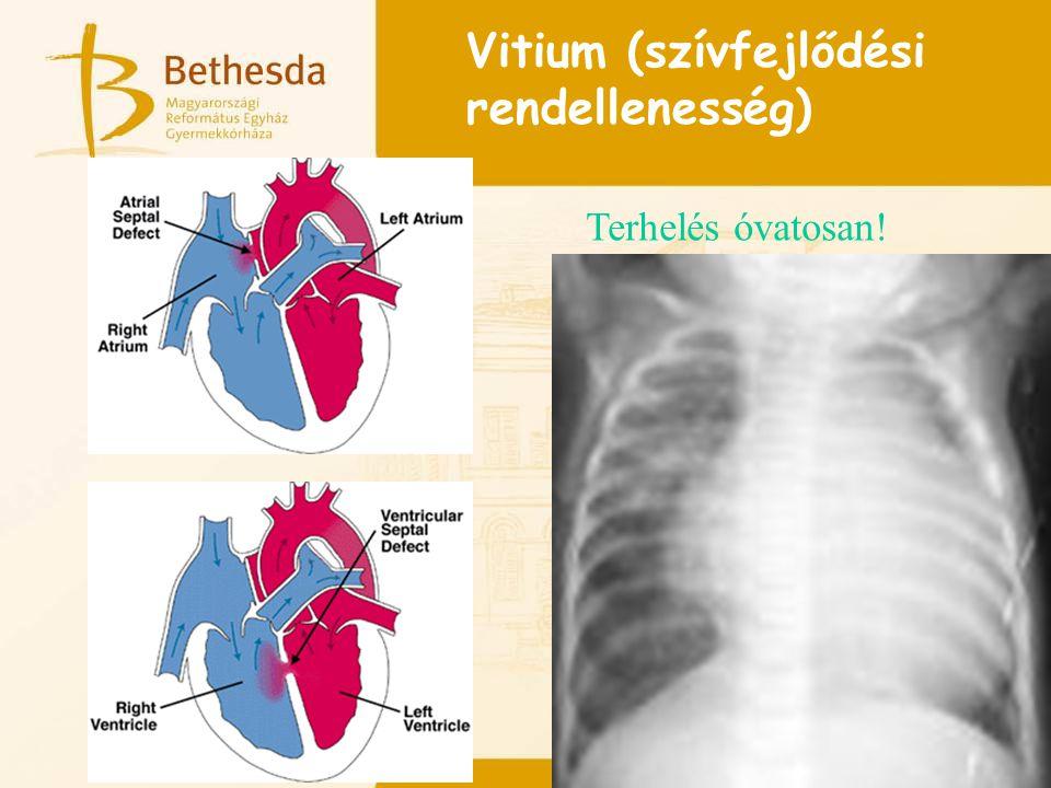 Vitium (szívfejlődési rendellenesség)