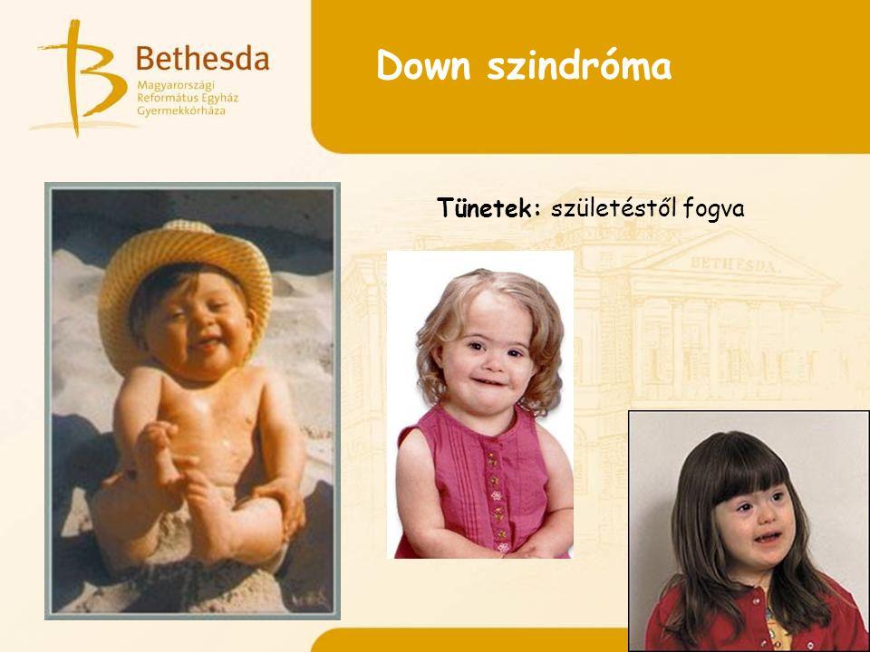 Down szindróma Tünetek: születéstől fogva
