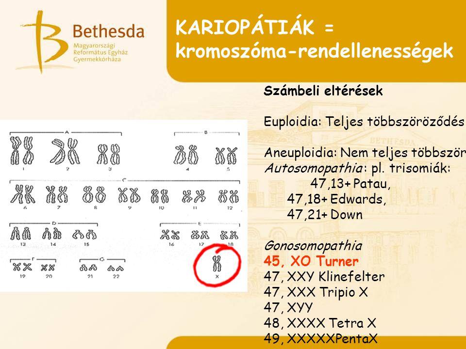 kromoszóma-rendellenességek