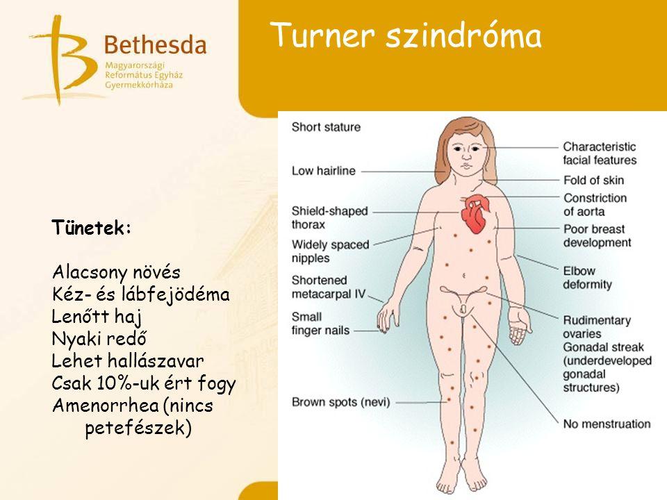 Turner szindróma Tünetek: Alacsony növés Kéz- és lábfejödéma