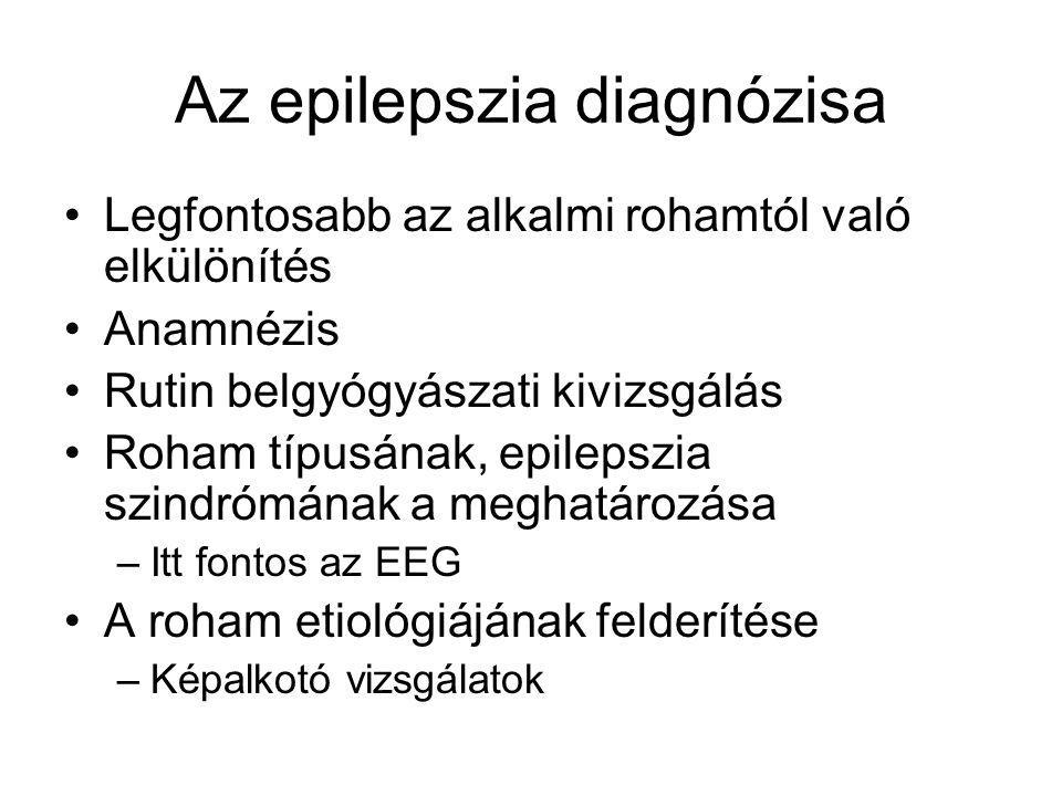 Az epilepszia diagnózisa