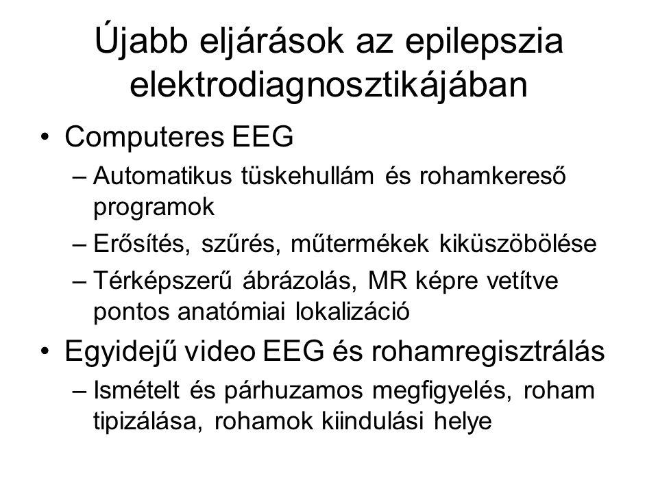 Újabb eljárások az epilepszia elektrodiagnosztikájában