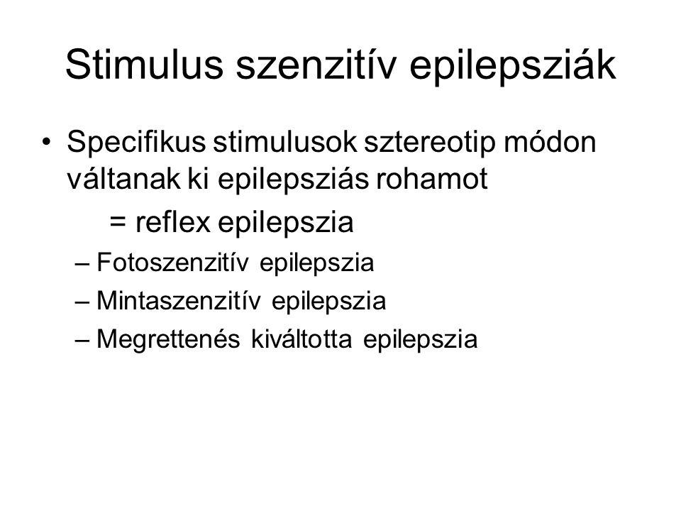Stimulus szenzitív epilepsziák