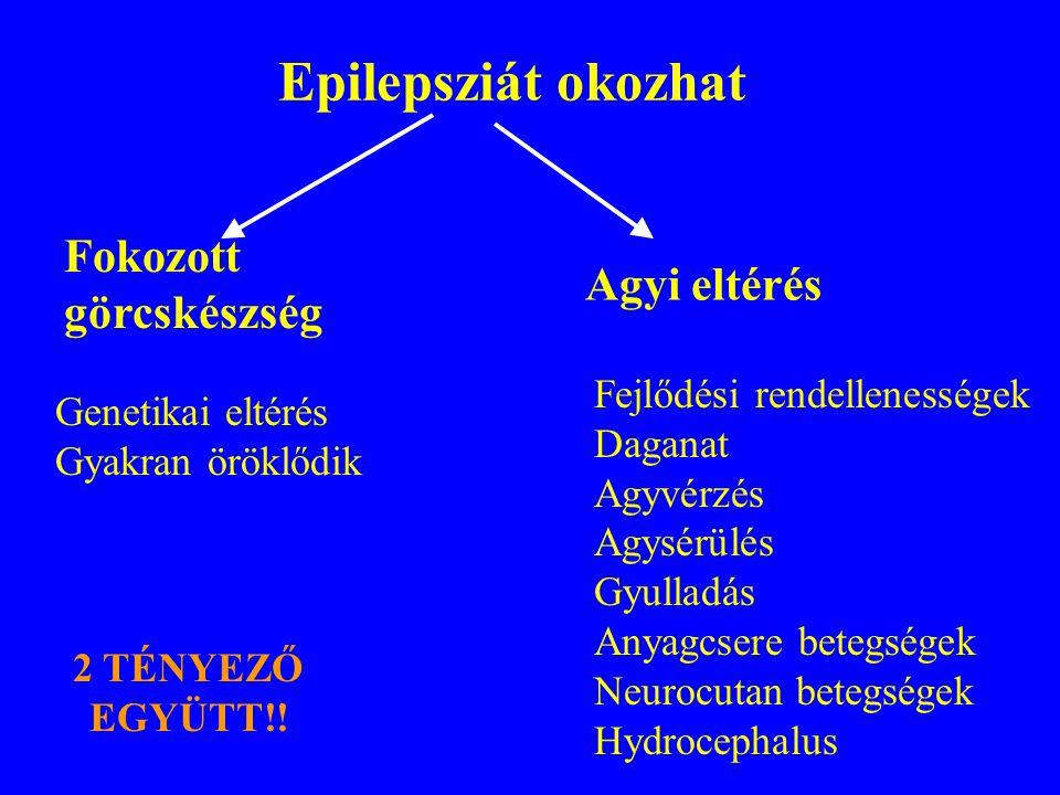 Epilepsziát okozhat Fokozott görcskészség Agyi eltérés