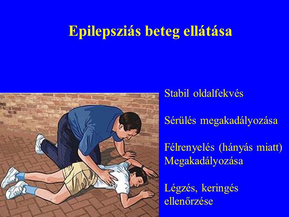 Epilepsziás beteg ellátása