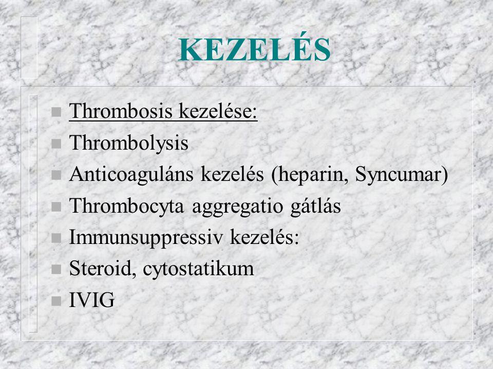 KEZELÉS Thrombosis kezelése: Thrombolysis