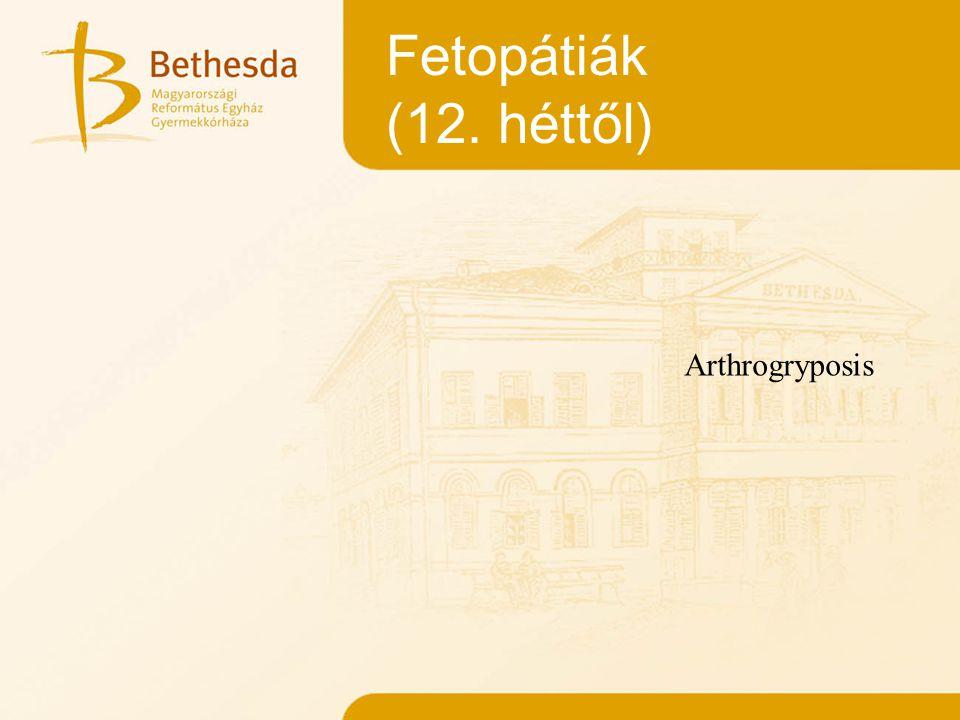 Fetopátiák (12. héttől) Arthrogryposis
