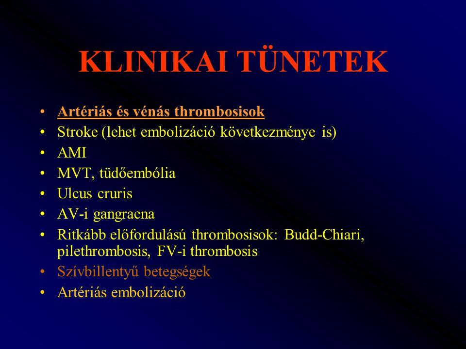 KLINIKAI TÜNETEK Artériás és vénás thrombosisok