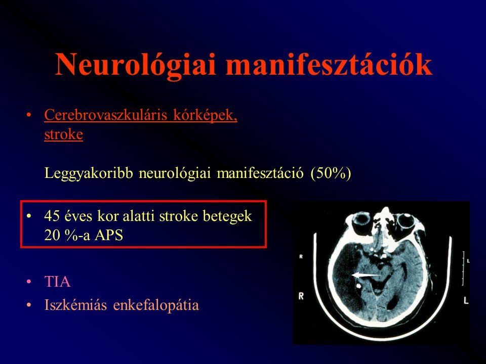 Neurológiai manifesztációk