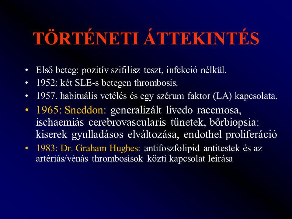 TÖRTÉNETI ÁTTEKINTÉS Első beteg: pozitív szifilisz teszt, infekció nélkül. 1952: két SLE-s betegen thrombosis.