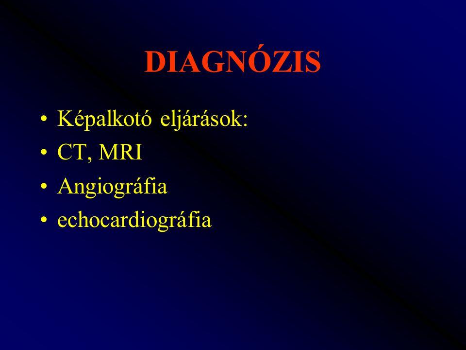 DIAGNÓZIS Képalkotó eljárások: CT, MRI Angiográfia echocardiográfia