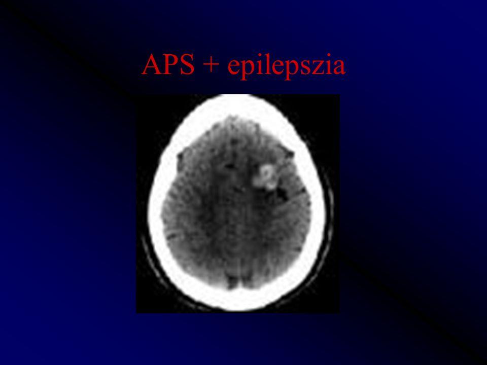 APS + epilepszia