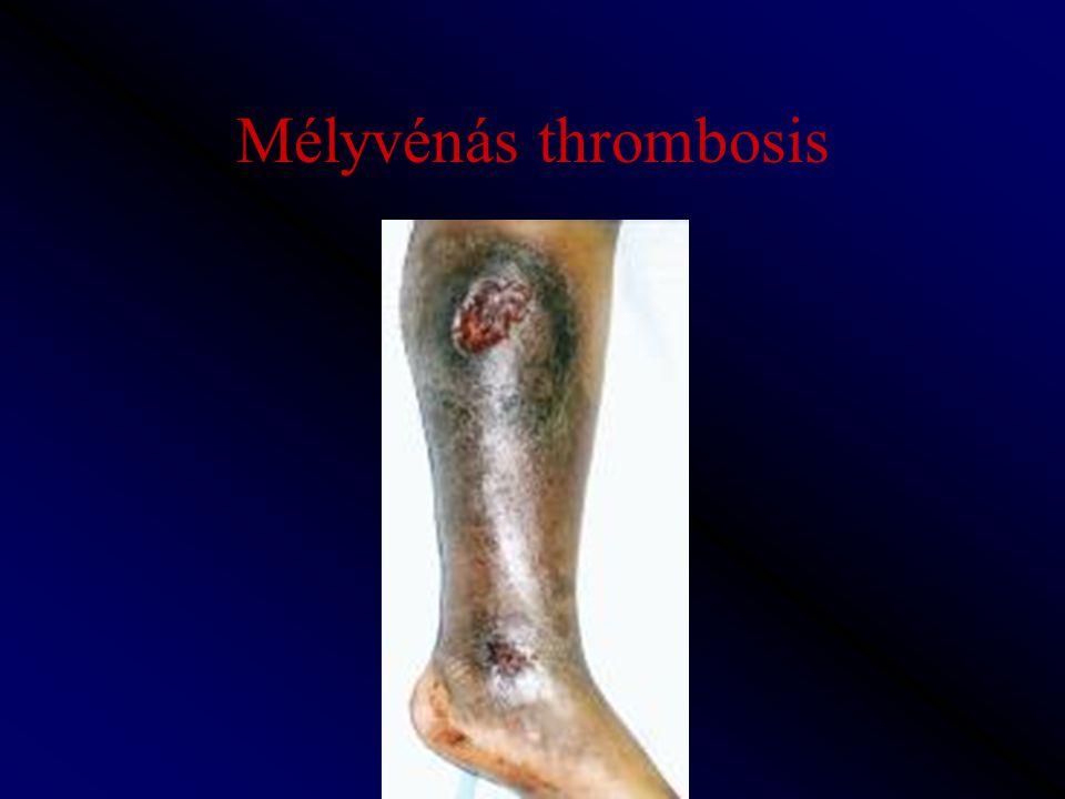 Mélyvénás thrombosis