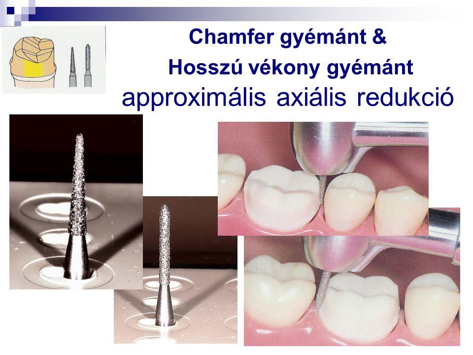 Chamfer gyémánt & Hosszú vékony gyémánt approximális axiális redukció
