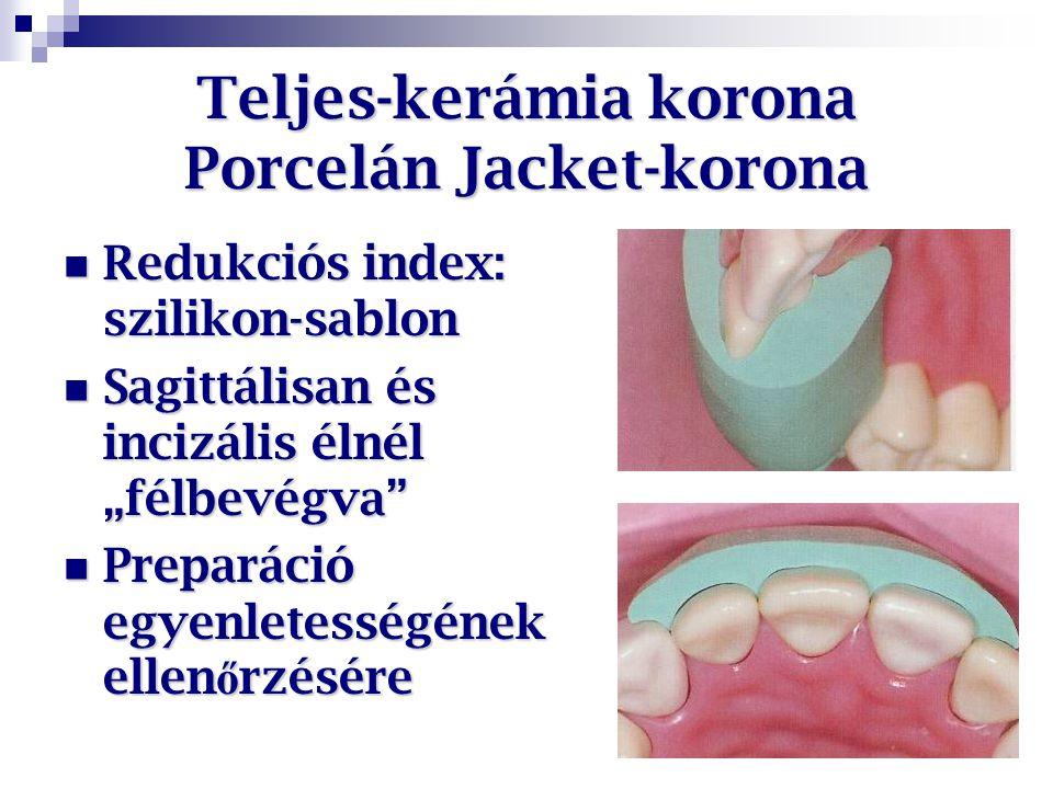Teljes-kerámia korona Porcelán Jacket-korona