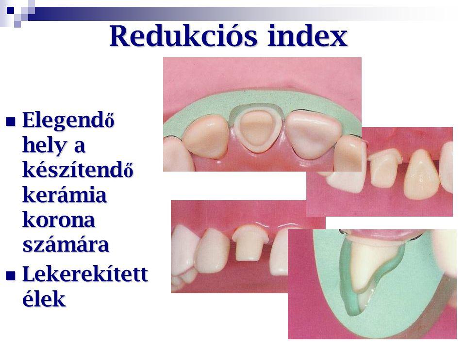 Redukciós index Elegendő hely a készítendő kerámia korona számára