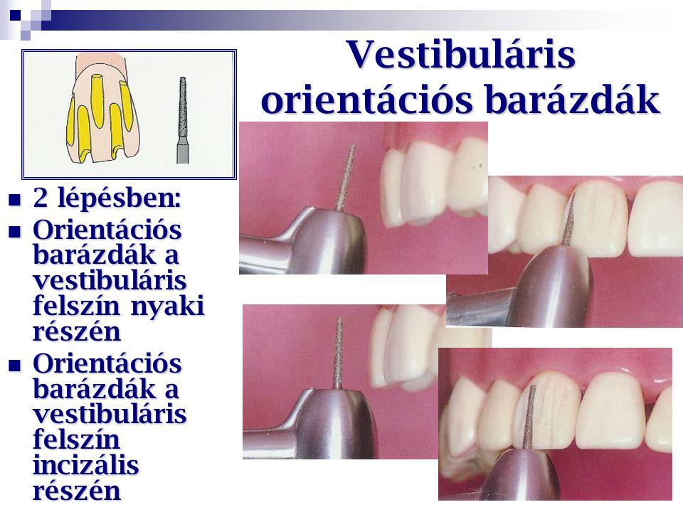 Vestibuláris orientációs barázdák