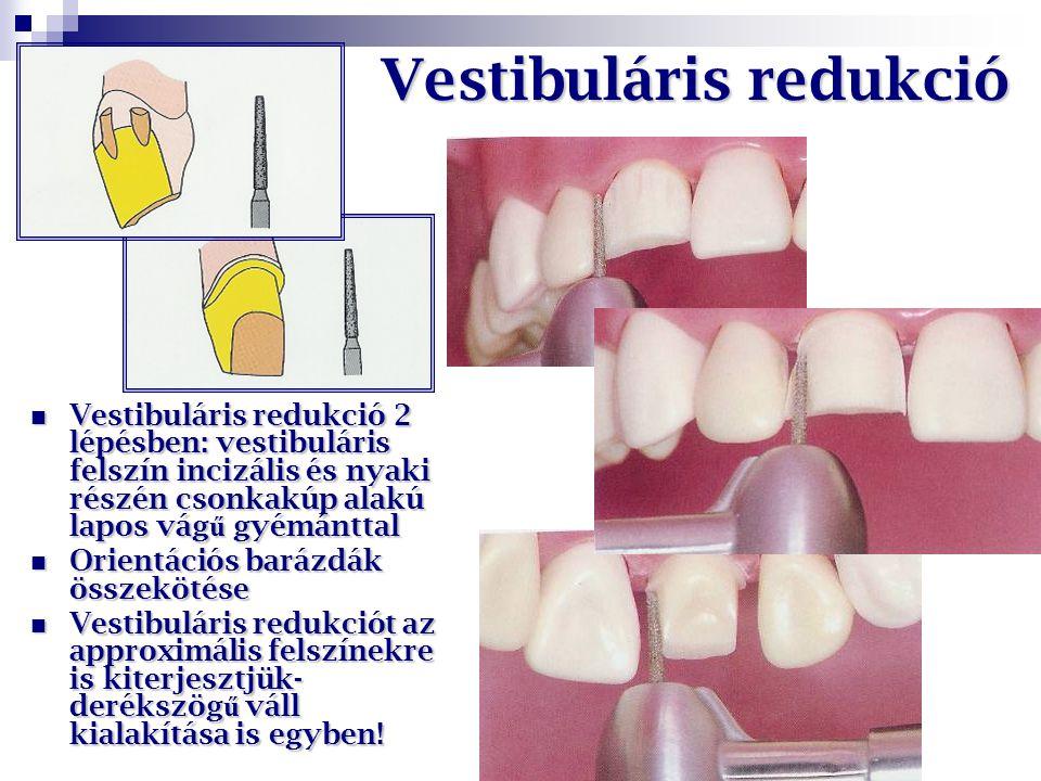 Vestibuláris redukció