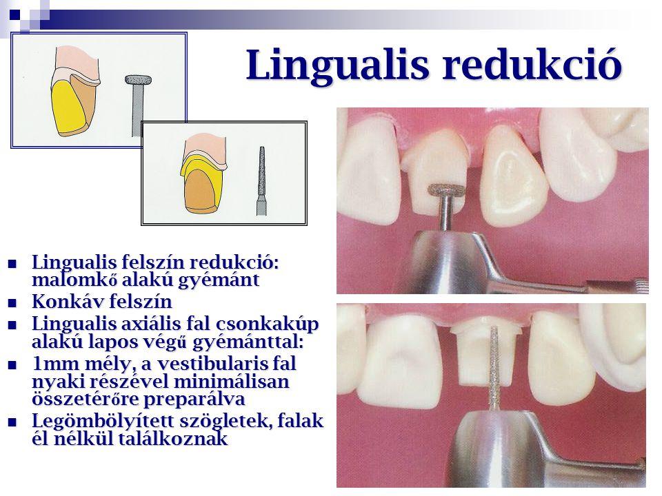 Lingualis redukció Lingualis felszín redukció: malomkő alakú gyémánt