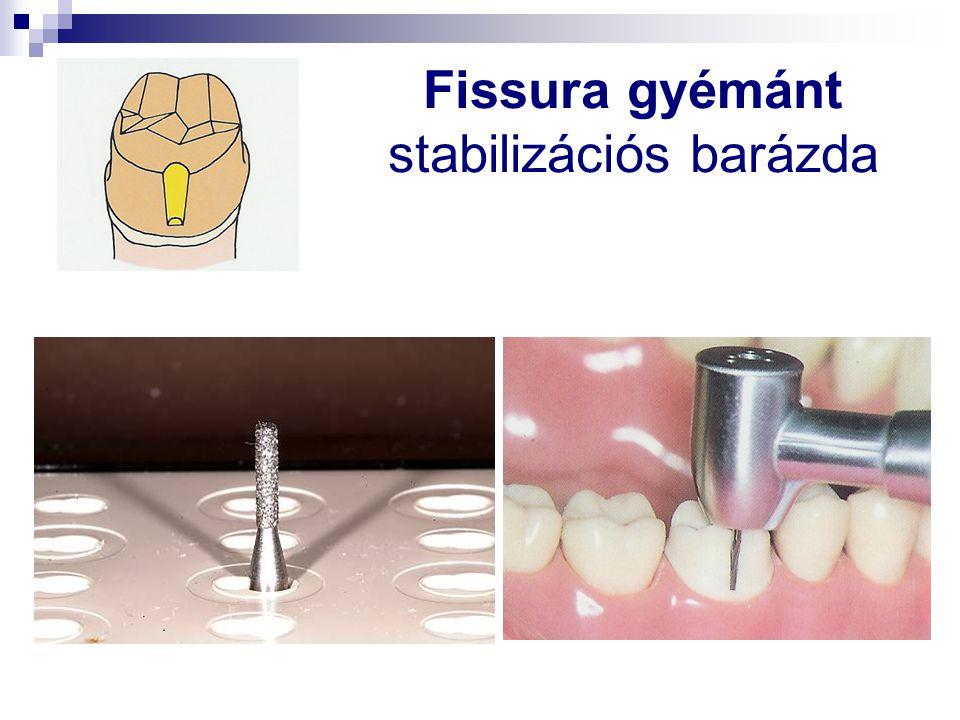 Fissura gyémánt stabilizációs barázda