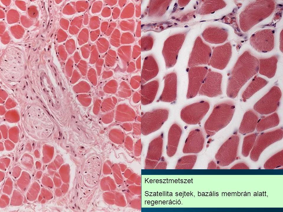 Keresztmetszet Szatellita sejtek, bazális membrán alatt, regeneráció.