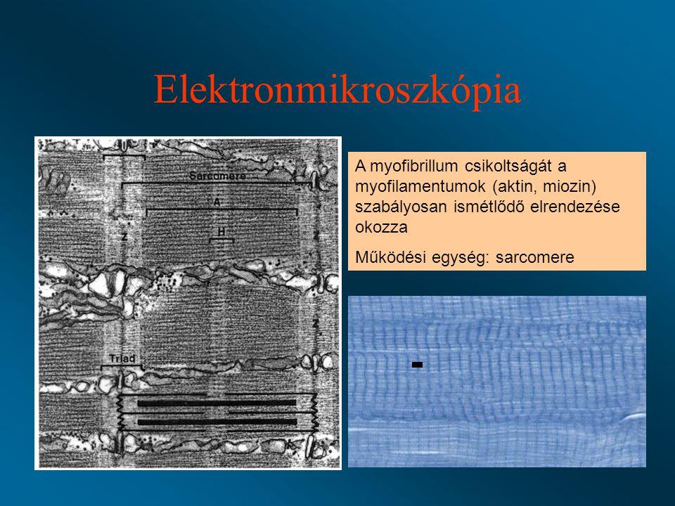 Elektronmikroszkópia