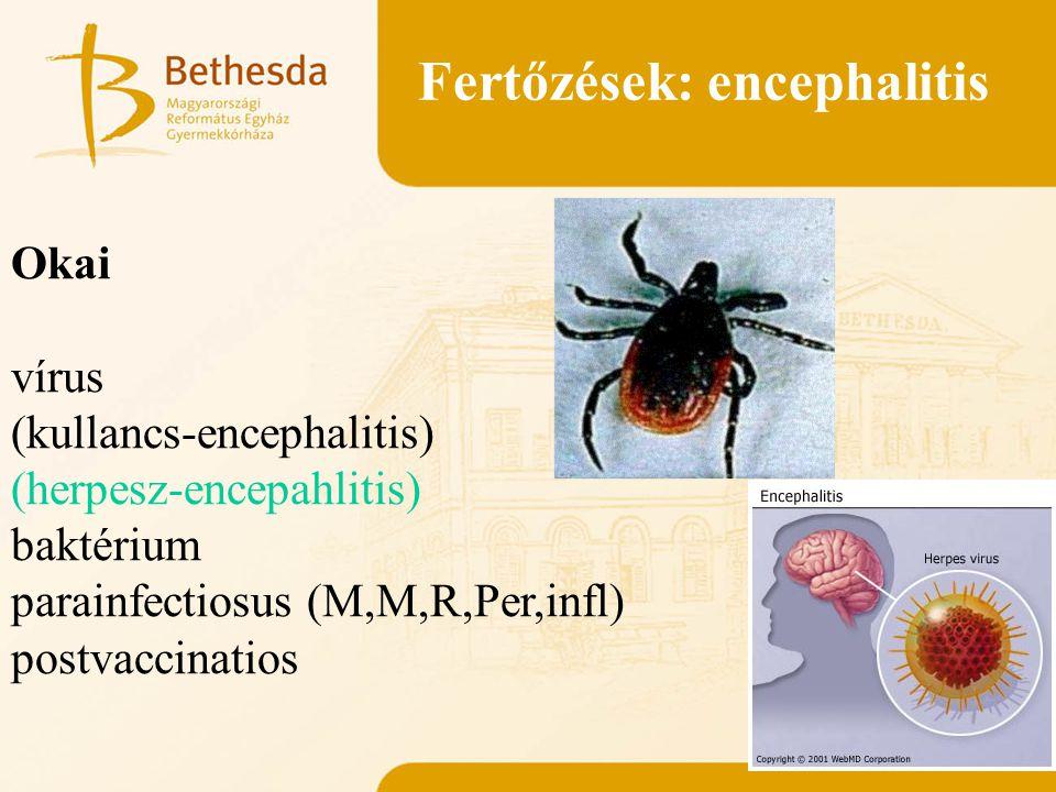 Fertőzések: encephalitis