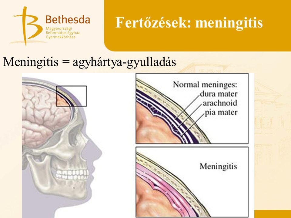 Fertőzések: meningitis