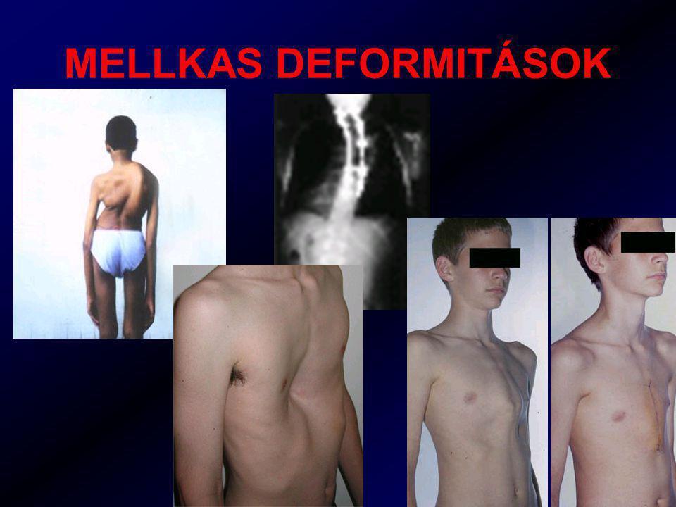 MELLKAS DEFORMITÁSOK
