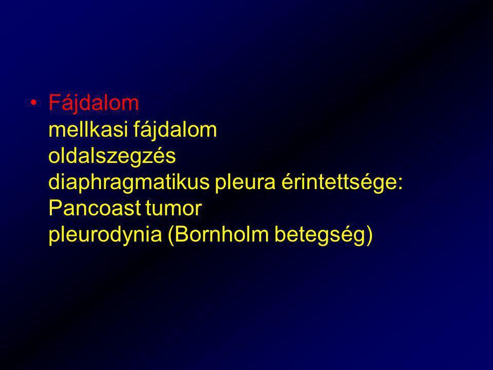 Fájdalom mellkasi fájdalom oldalszegzés diaphragmatikus pleura érintettsége: Pancoast tumor pleurodynia (Bornholm betegség)