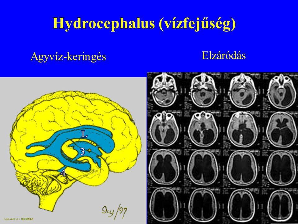 Hydrocephalus (vízfejűség)