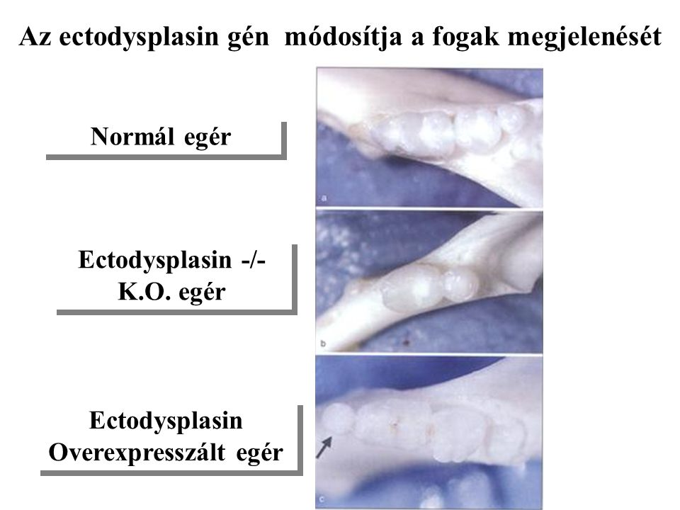 Az ectodysplasin gén módosítja a fogak megjelenését
