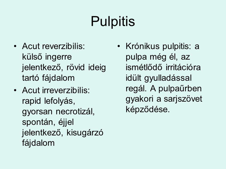Pulpitis Acut reverzibilis: külső ingerre jelentkező, rövid ideig tartó fájdalom.