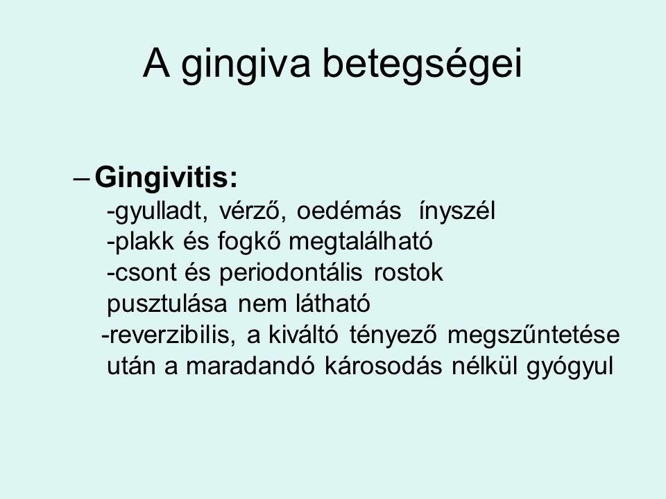A gingiva betegségei