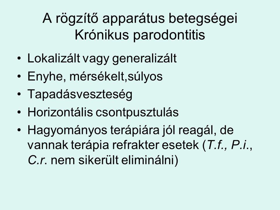A rögzítő apparátus betegségei Krónikus parodontitis