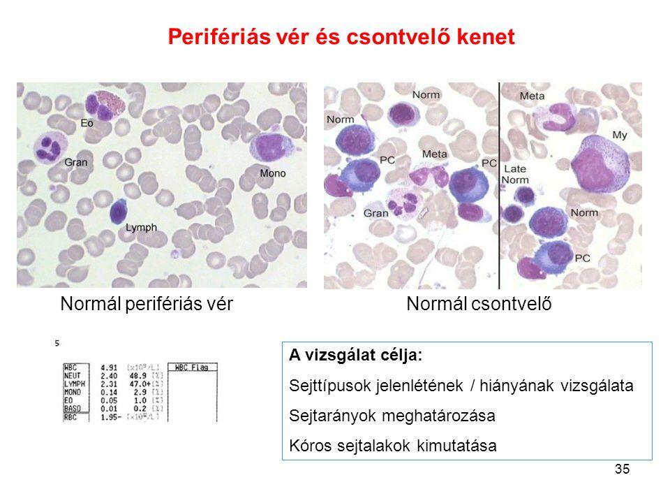 Perifériás vér és csontvelő kenet