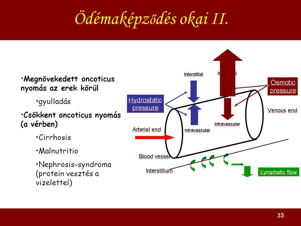Ödémaképződés okai II. Megnövekedett oncoticus nyomás az erek körül