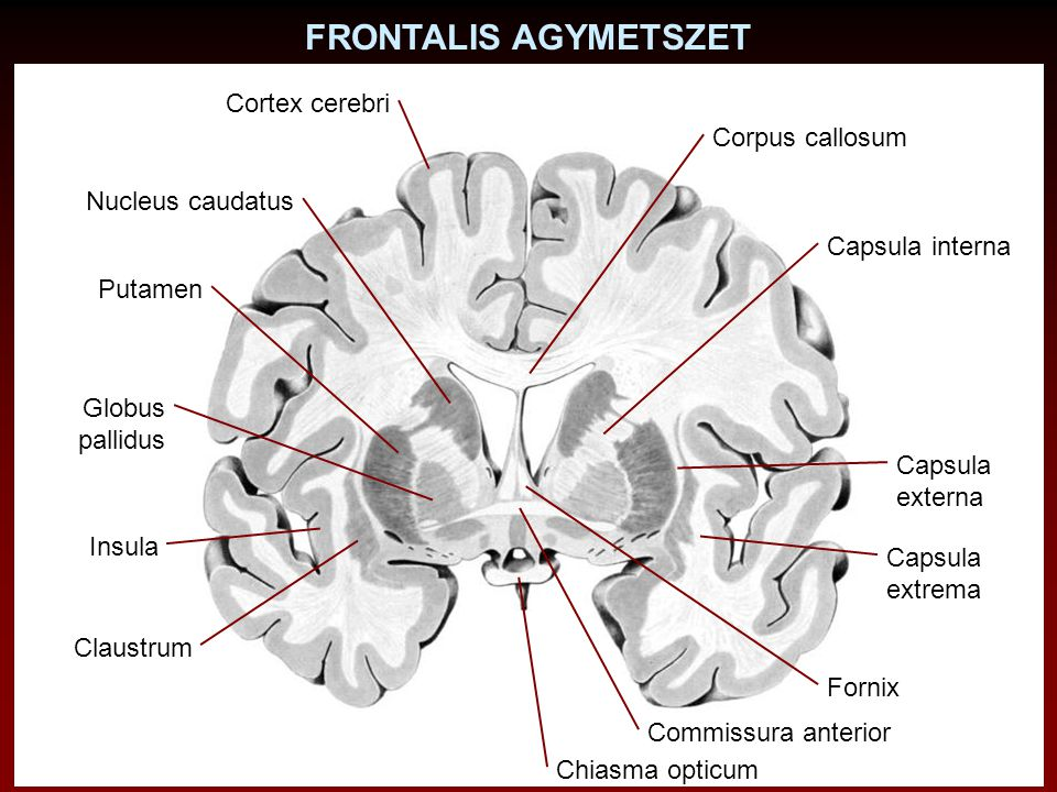 FRONTALIS AGYMETSZET Cortex cerebri Corpus callosum Nucleus caudatus